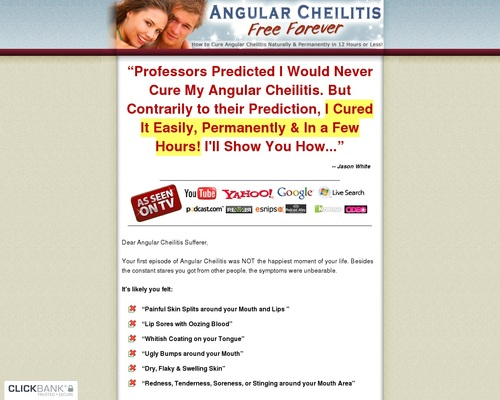 Angular Cheilitis Free Forever - How to Cure Angular Cheilitis Naturally & Permanently in 12 Hours or Less